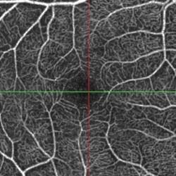 L'angiografia OCT (Angio OCT) senza iniezione di mezzo di contrasto si è rivelata nell'ultimo angiografia oct